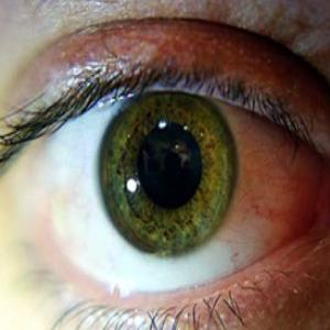 در فصل پاییز بیشتر مراقب چشمانتان باشید