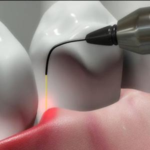 کاربرد های لیزر در درمانهای دندانپزشکی