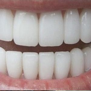 پیشنهادهایی برای زیبایی دندانها
