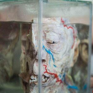 تصاویر/ ترسناکترین موزه جهان که ورود به آن جرأت میخواهد (۱۸+)