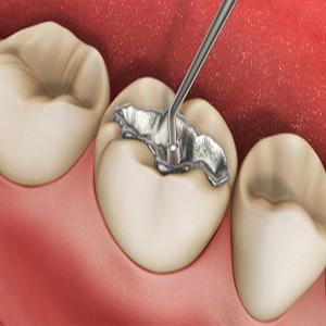 باجدیدترین روشهای رفع پوسیدگی دندان آشنا شوید