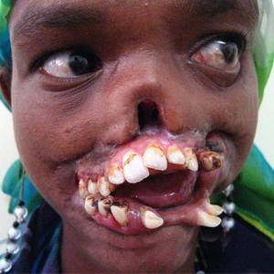 بیماری وحشتناکی که از ایدز کشنده تر است + تصاویر