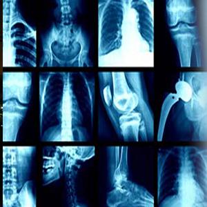 پایان نیوز: رادیولوژی