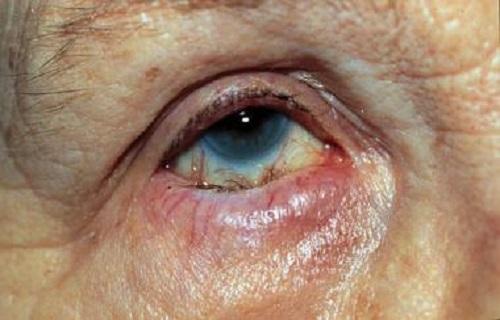 بیماری چشمی «آنتروپیون» را بیشتر بشناسید
