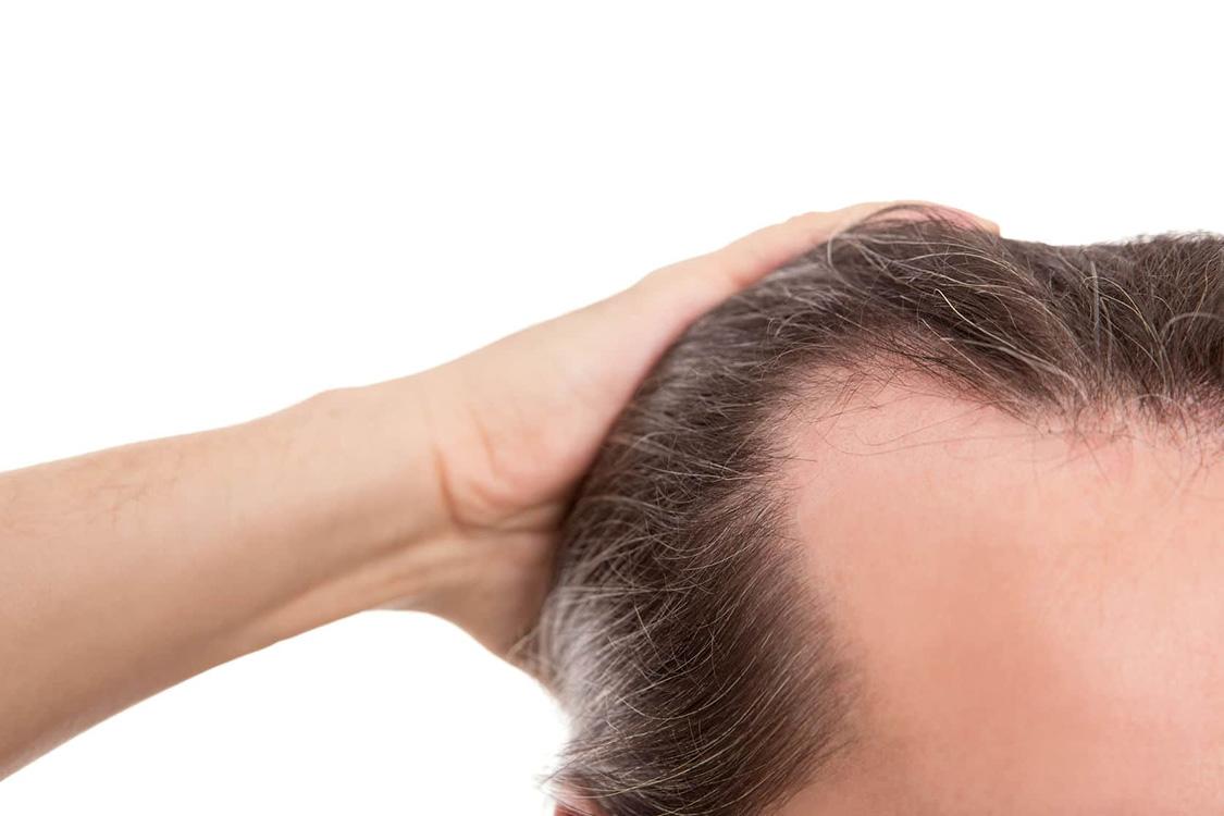 پااین تیتر: ریزش مو