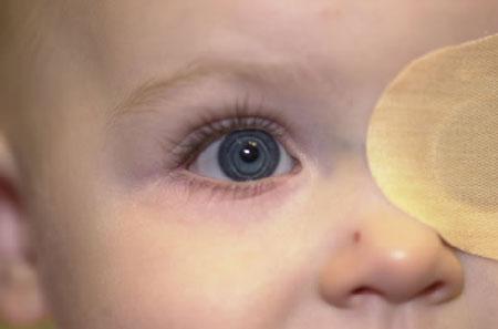 پایان تیتر: تومور شبکیه کودکان