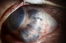 پیشگیری و درمان آب سیاه چشم قبل از نابینایی کامل