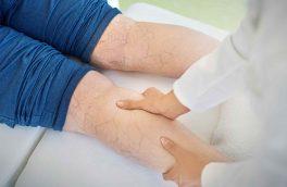 علائم و راه های درمان واریس پا را بشناسیم