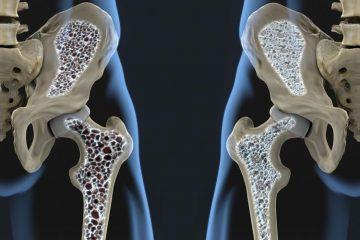 پوکی استخوان بیماری خاموش استخوانها