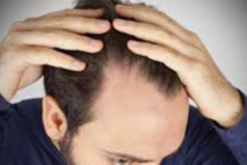 علل ریزش مو و درمان آن