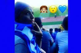 «دختر آبی» در بیمارستان درگذشت + عکس