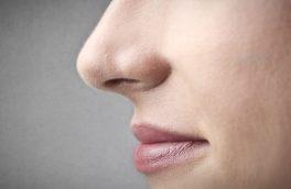 کتک خوردن یک زن تهرانی به خاطر جراحی زیبایی / امیر تحمل نداشت